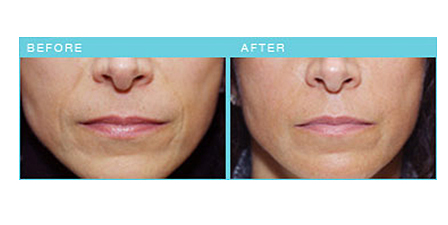 Treatment with Radiesse at both the nasolabial folds and marionette lines
