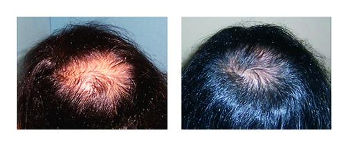 iGrowd - Thicker, fuller hair