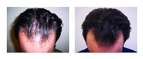 Get More Hair the Scientific Way